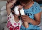 北京5岁女童被藏獒撕咬毁容
